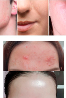 Picture of SOME BY MI | AHA BHA PHA 30 Days Miracle Cream
