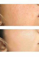 Picture of SOME BY MI   AHA BHA PHA 30 Days Miracle Tea Tree Clear Spot Oil